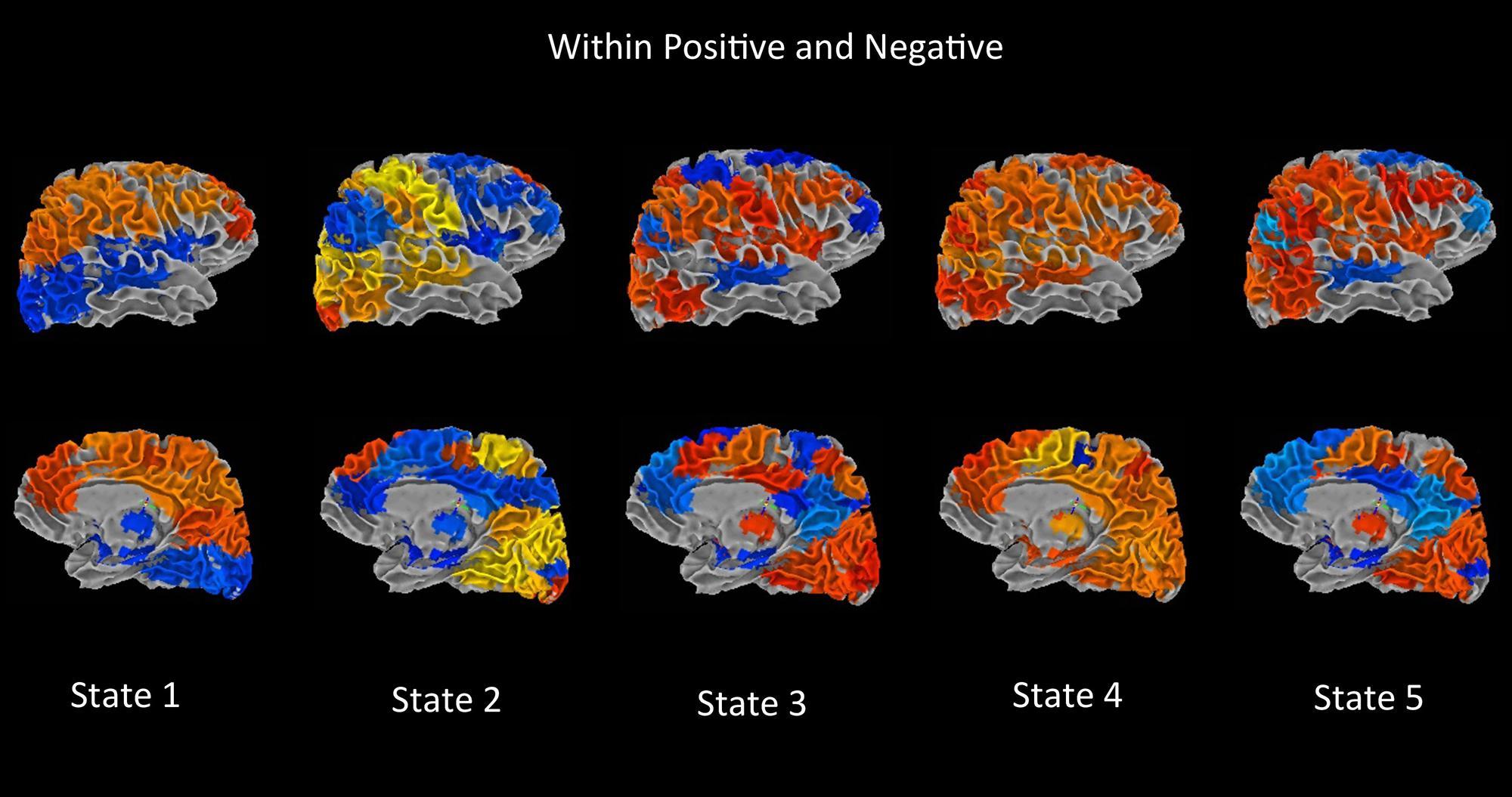 Bipolar Disorder Brain Vs Normal Brain Frontiers dynamic connectivity ...
