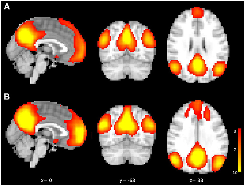 changes in young adulthood Contrary to belief, study published in frontiers in human neuroscience, shows  considerable structural changes in the brain from early to.