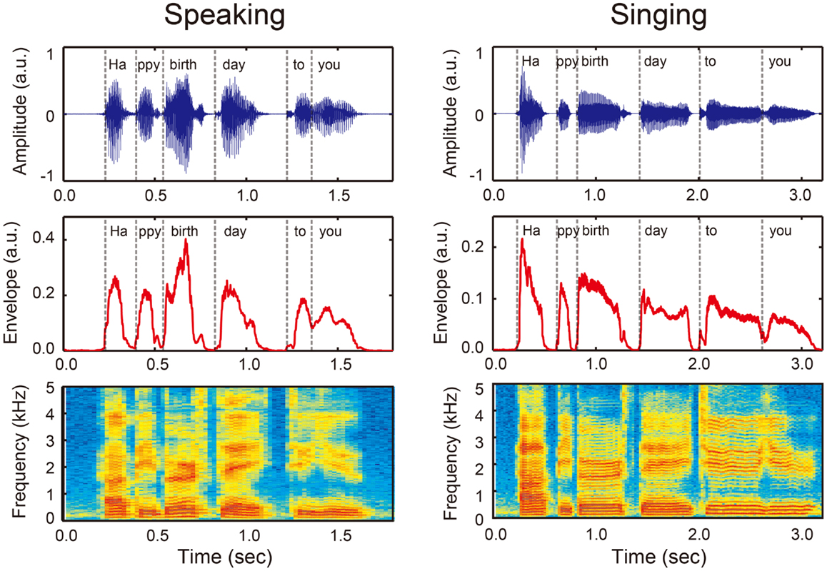the acoustics of speech in individuals The acoustic theory of speech production: the source-filter model acoustic speech output in humans and many nonhuman species is commonly considered to result from a combination of a source of sound energy (eg the larynx) modulated by a transfer (filter) function determined by the shape of the supralaryngeal vocal tract.