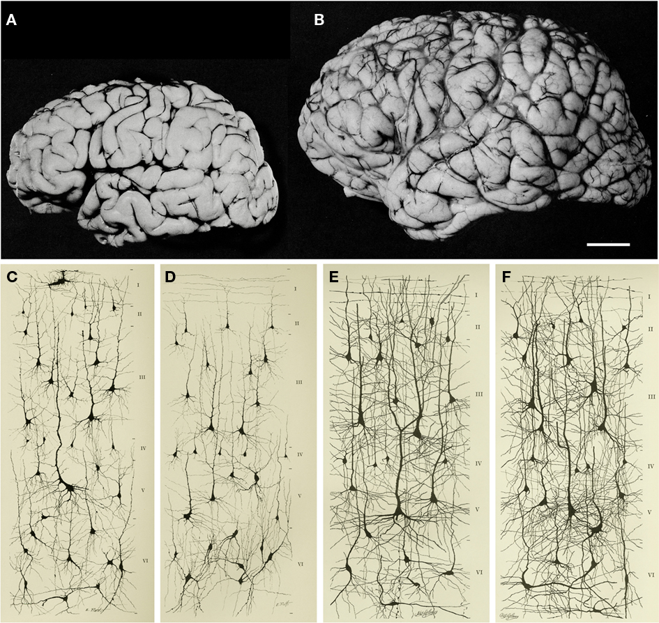 Frontiers | The Evolution of the Brain, the Human Nature of ...
