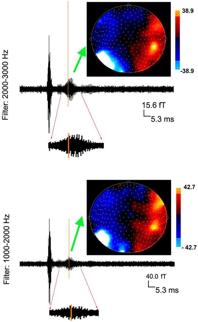 Frontiers | Magnetoencephalography Detection of High-Frequency ...