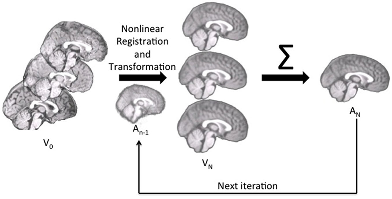 frontiers age specific mri brain and head templates for healthy frontiersin org