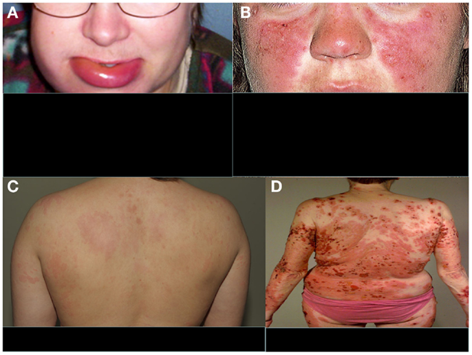 angioedema articles