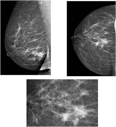 optimization of contrast-enhanced digital breast tomosynthesis
