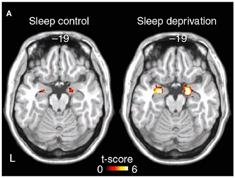 Natural Sleep Aid For Adults Sleep Aid With Wellbutrin
