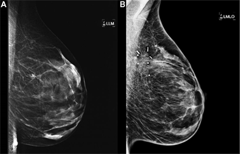 Treatment for breast cancer journal articles italicized
