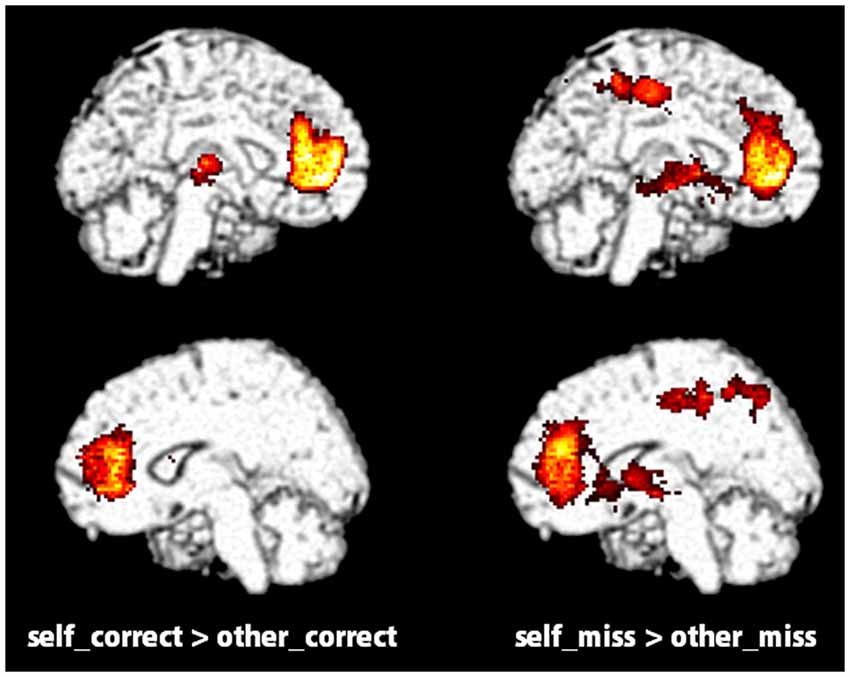 self reference memory recognition The self-reference effect in emotional memory: memory for these words was assessed with both recall and recognition tasks the results from both tasks.