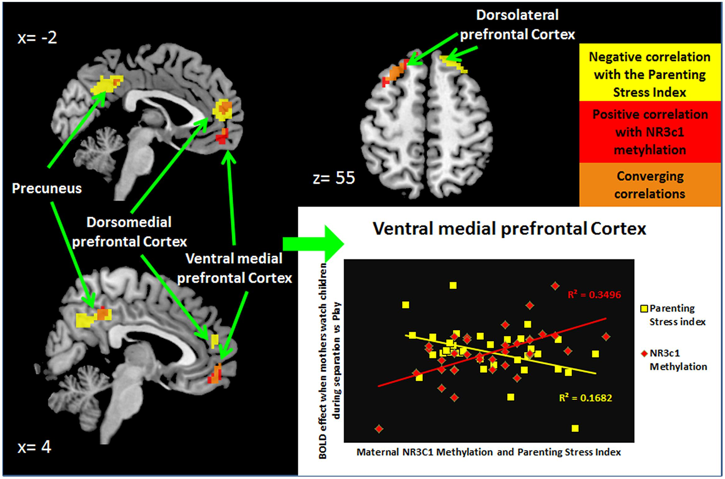 Can Criminal Behavior Be Predicted Using Brain Scans?