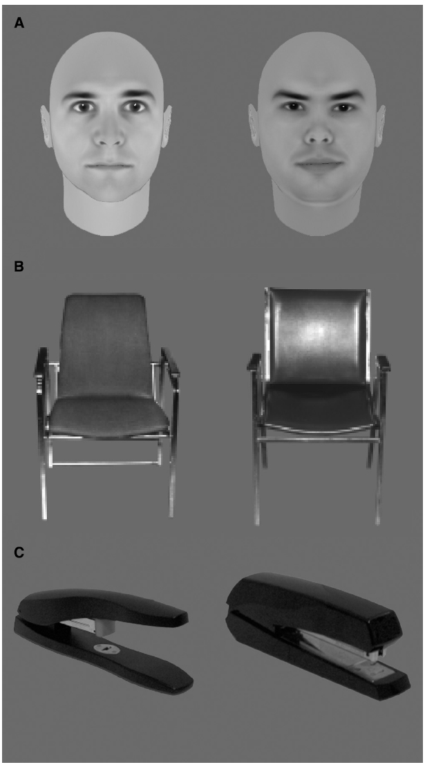 category specific impairments in recognition and naming A category-specific naming impairment after temporal lobectomy  retroactivation : a systems-level proposal for the neural substrates of recall and recognition.
