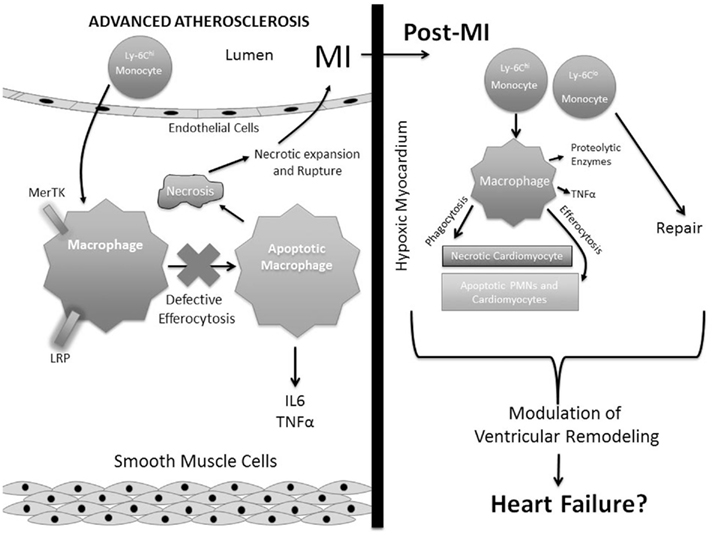myocardial infarction articles