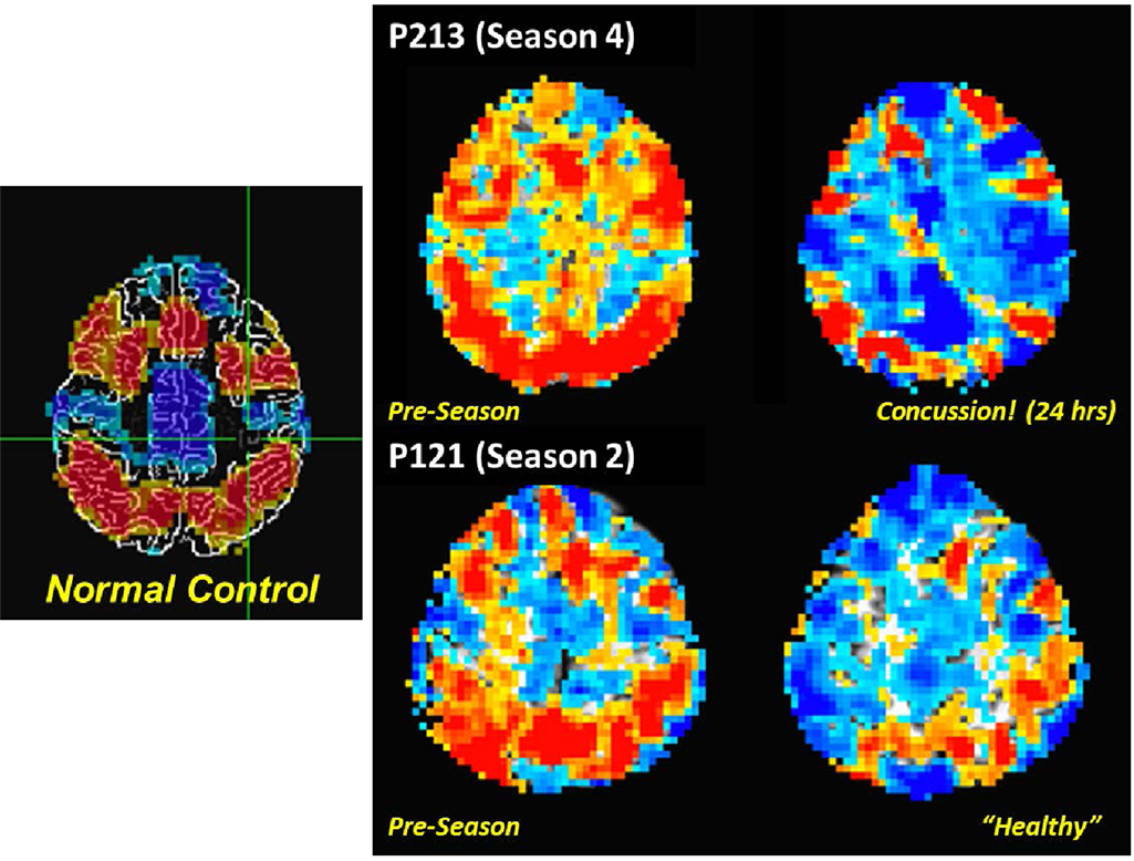 the use of brain scans in medicine and neuroscience Beyond the medical implications of neuroscience  use of brain scans in  research in the dynamic environment of stanford law school.