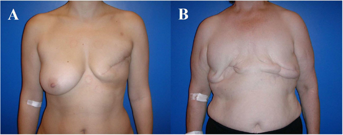 breast reconstruction risks