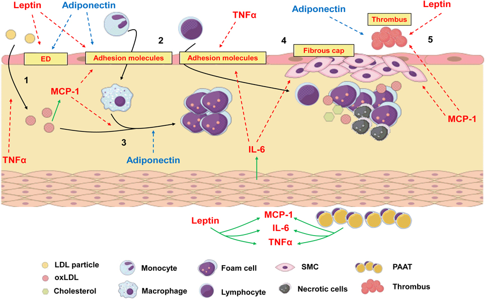 atherosclerosis 1 Webmd experts explain the link between high blood pressure and atherosclerosis, also called hardening of the arteries.