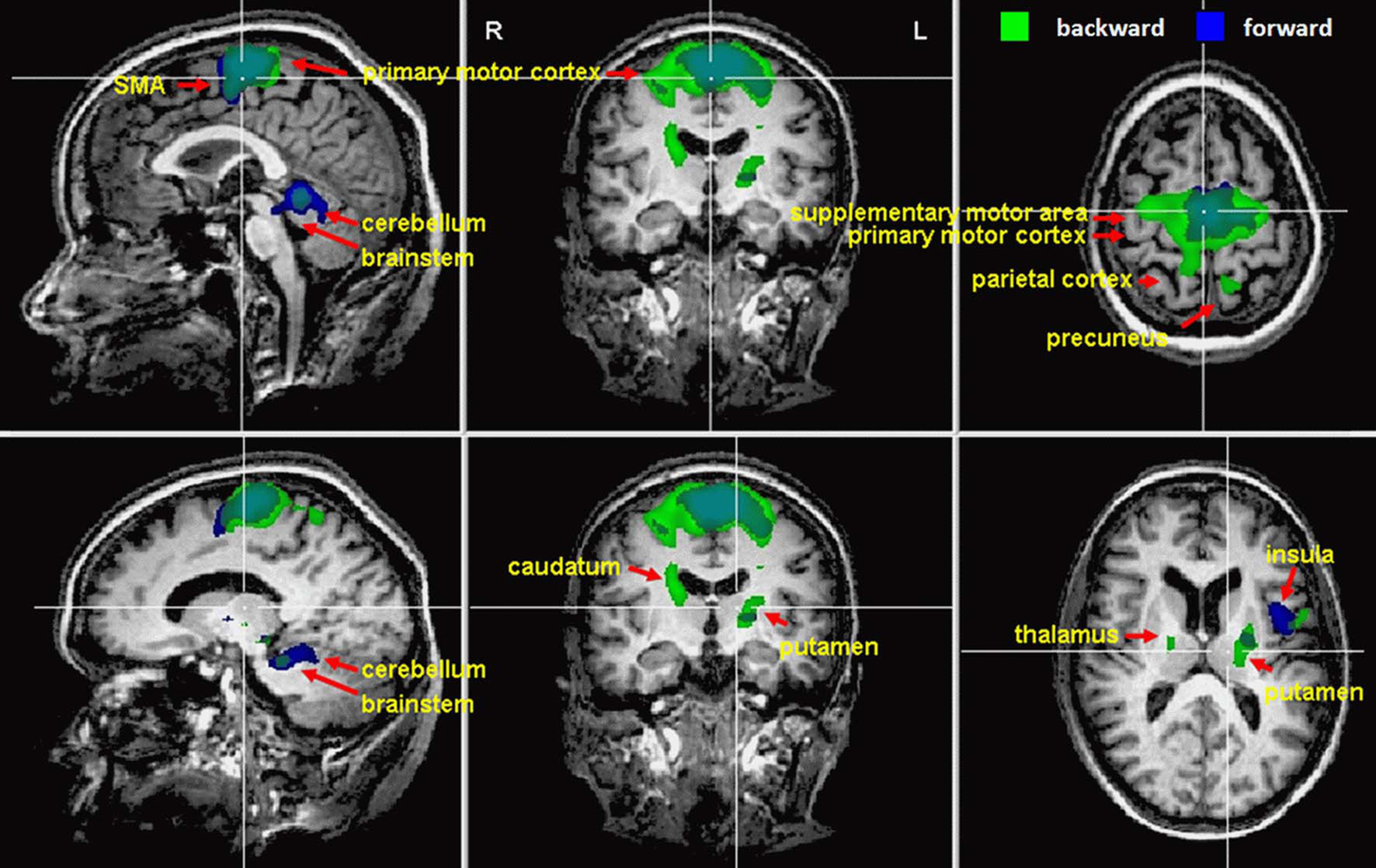 Cognition: The Ultimate Brain Function