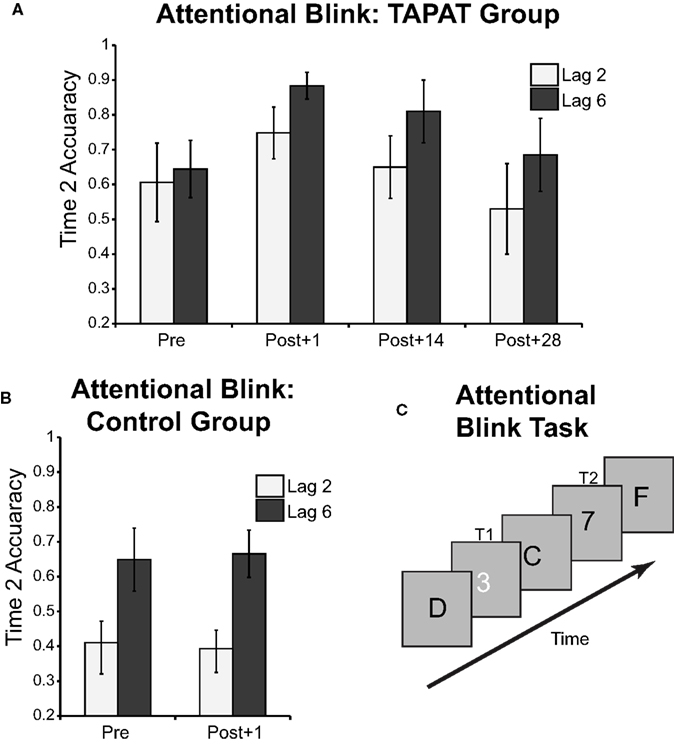 Attentional Blink - Essay Example