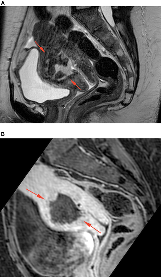 Frontiers Conservative Management Of A Scar Abscess