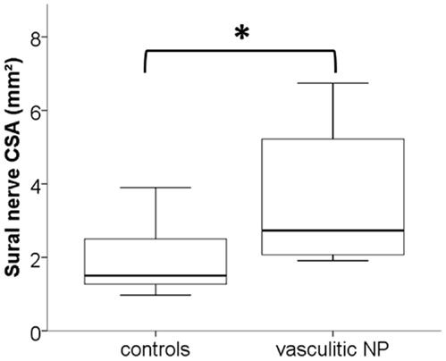 Neurological Disorder Neuropathy Neuropathy Definition