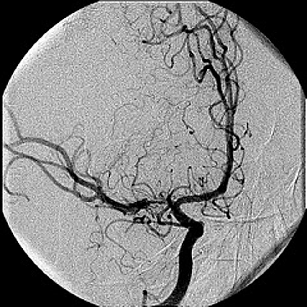 Right Cerebral Right Middle Cerebral Artery