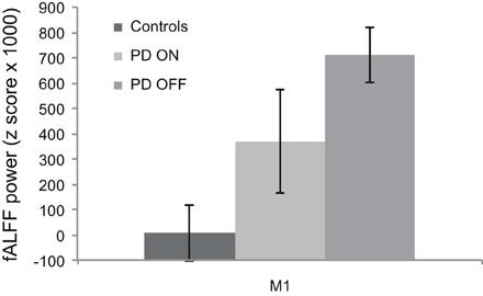 Alff fmri study