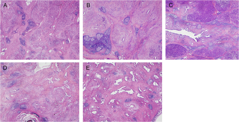 igg4-related sclerosing disease of the breast successfully treated by steroid therapy