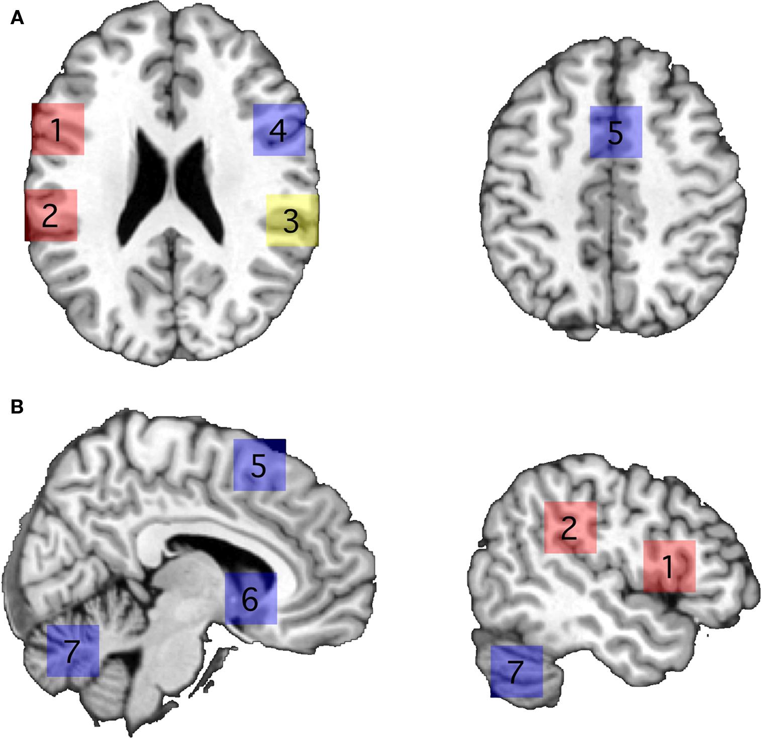 Supramarginal Gyrus Left supramarginal gyrus Supramarginal Gyrus Mri
