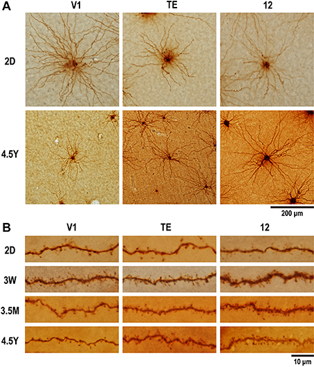 Postnatal Dendritic Growth And Spinogenesis Of
