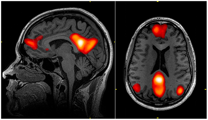 investigating functional brain networks psychological states real time