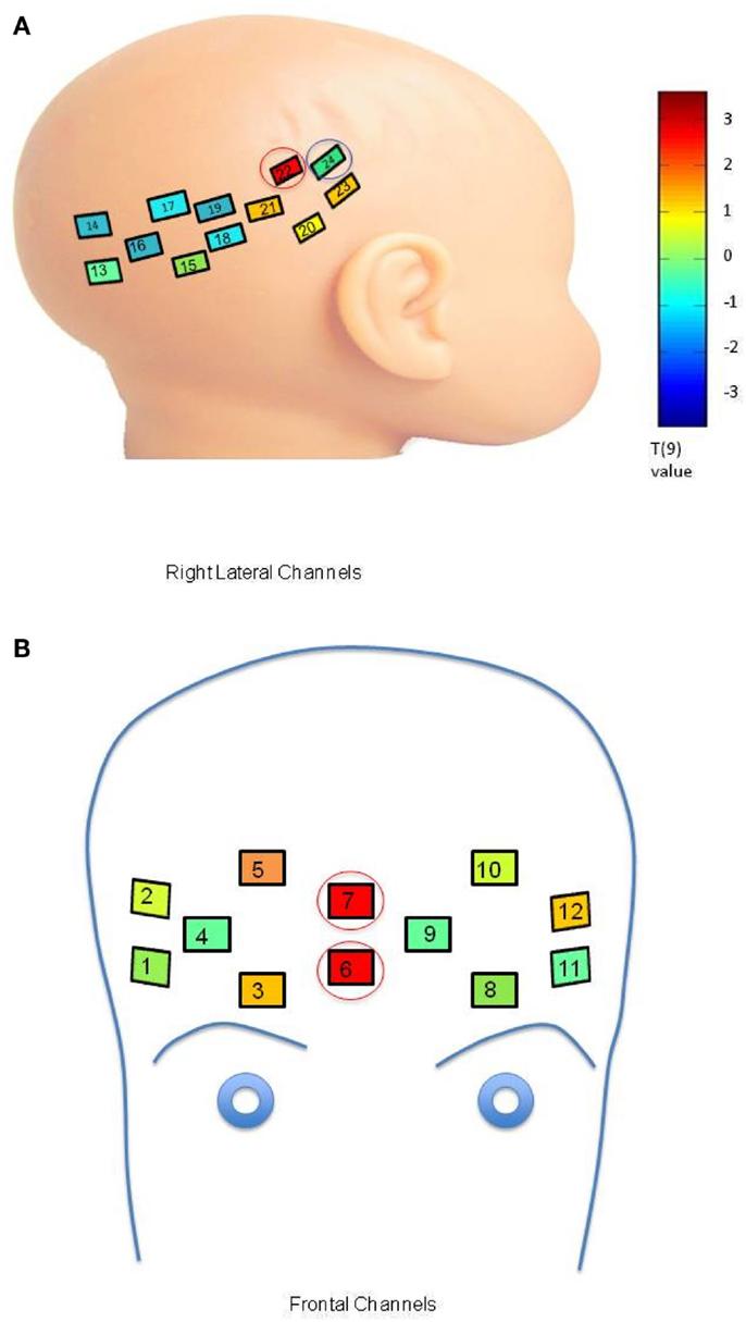 neural facial processing