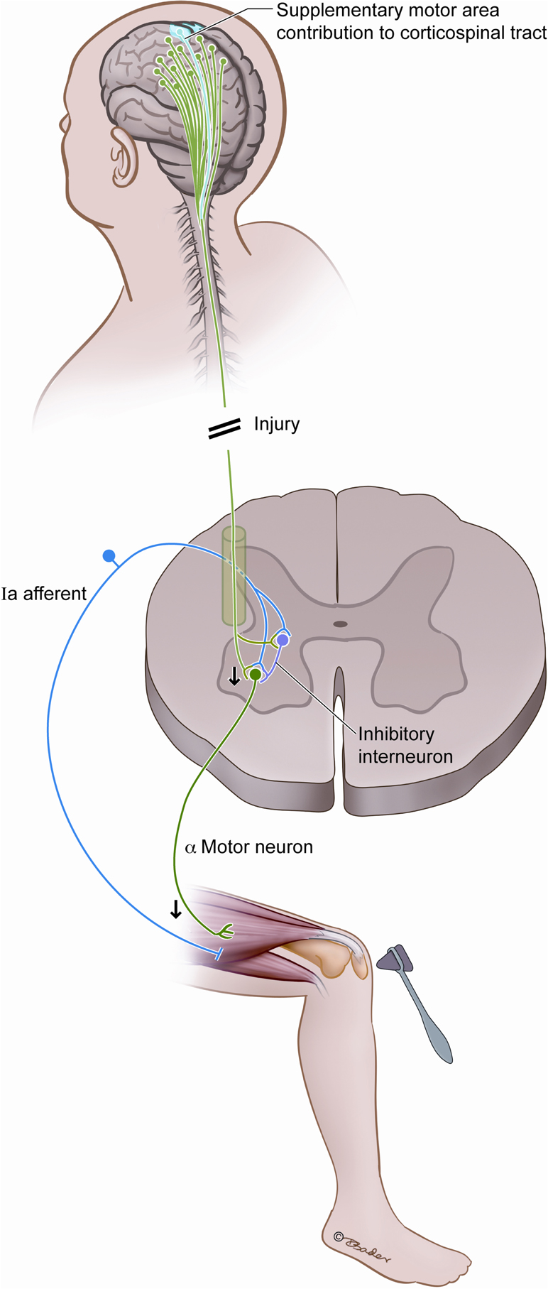 Frontiers lower motor neuron findings after upper motor for What is motor neuron
