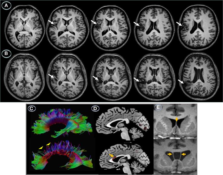 Multimodal NeuroimagingSupramarginal Gyrus Mri