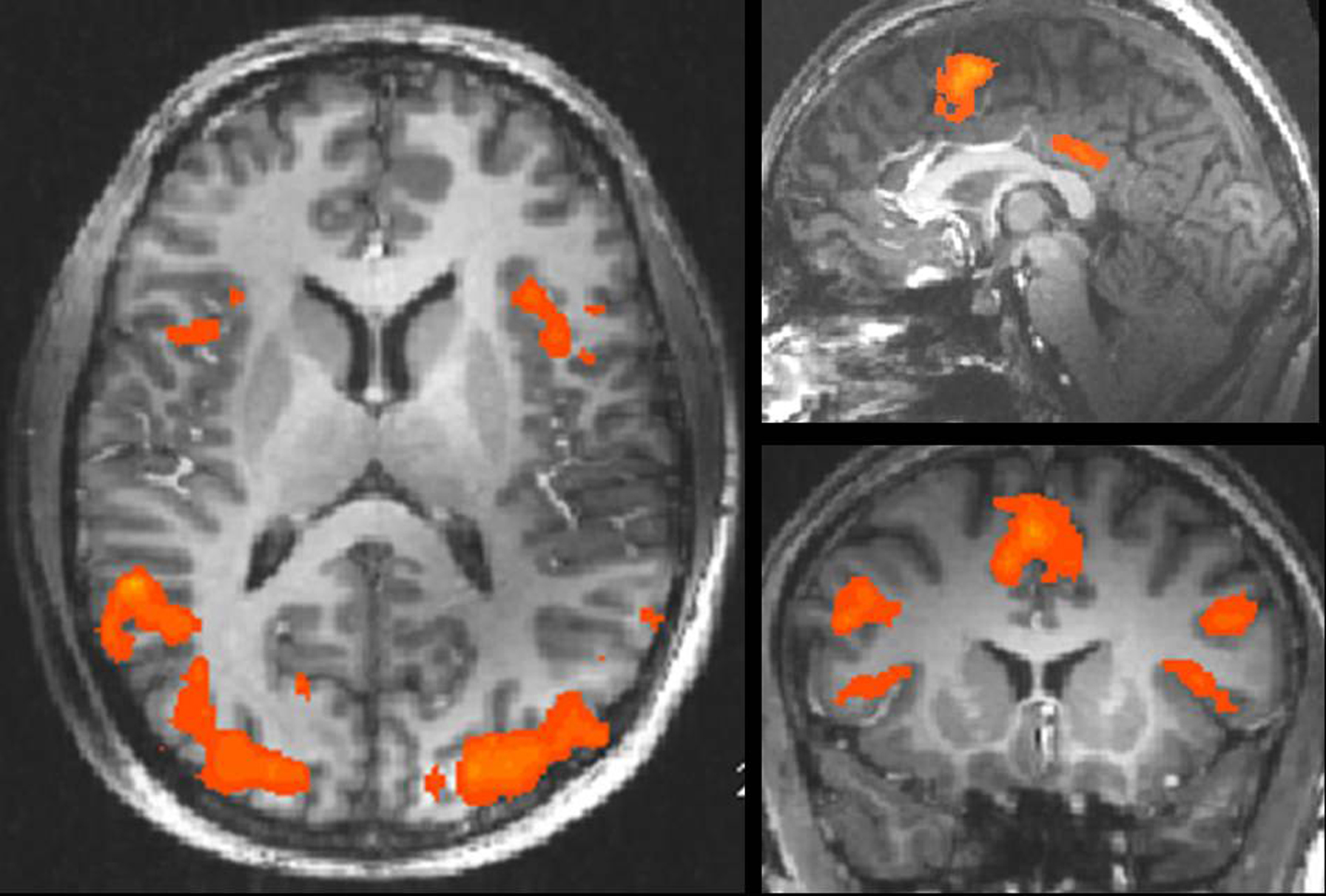 Frontiers | High Field fMRI Reveals Thalamocortical Integration of ...