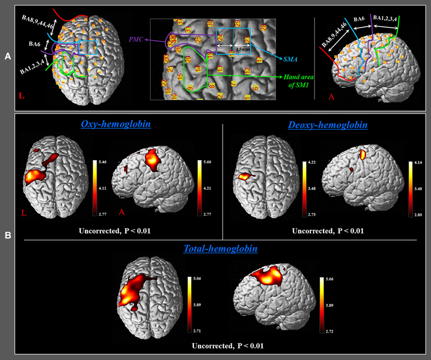 Noninvasive Study of Brain Connectivity With EEG and NIRS ...
