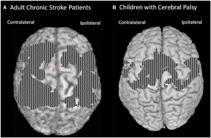 frontiers the functional significance of cortical