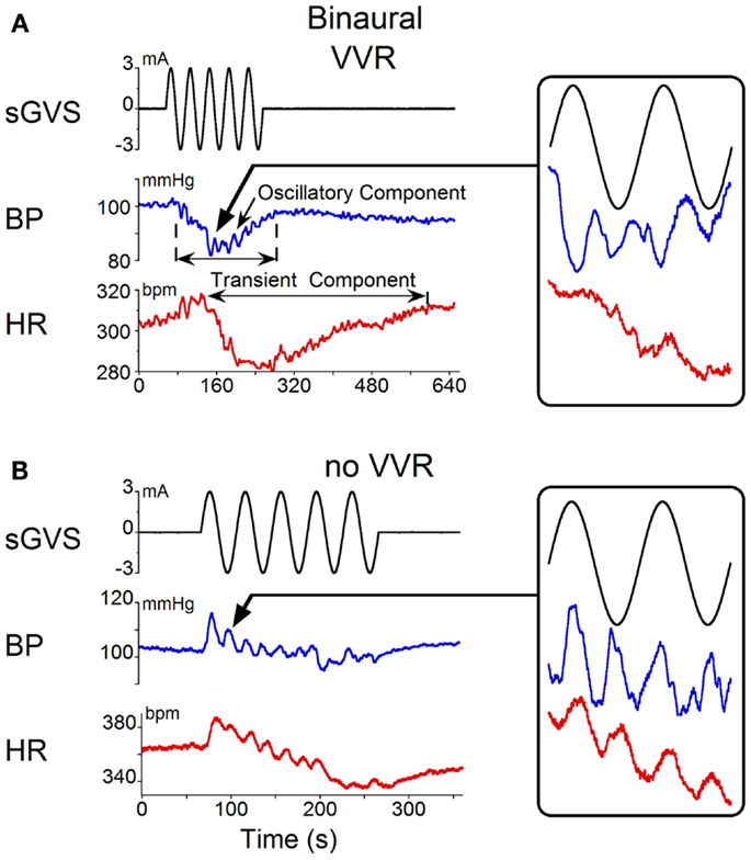 frontiers | vasovagal oscillations and vasovagal responses, Human Body