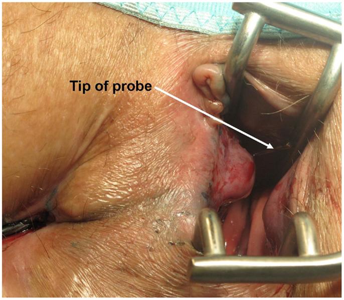 Internal anal fistula