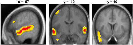 roles of the temporal and frontal Frontotemporal dementia is a rare disorder these two groups have a preference for the frontal and temporal lobes that cause dementia.