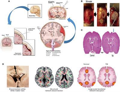 frontiers mesenchymal stem cells   treatment  traumatic brain injury neurotrauma
