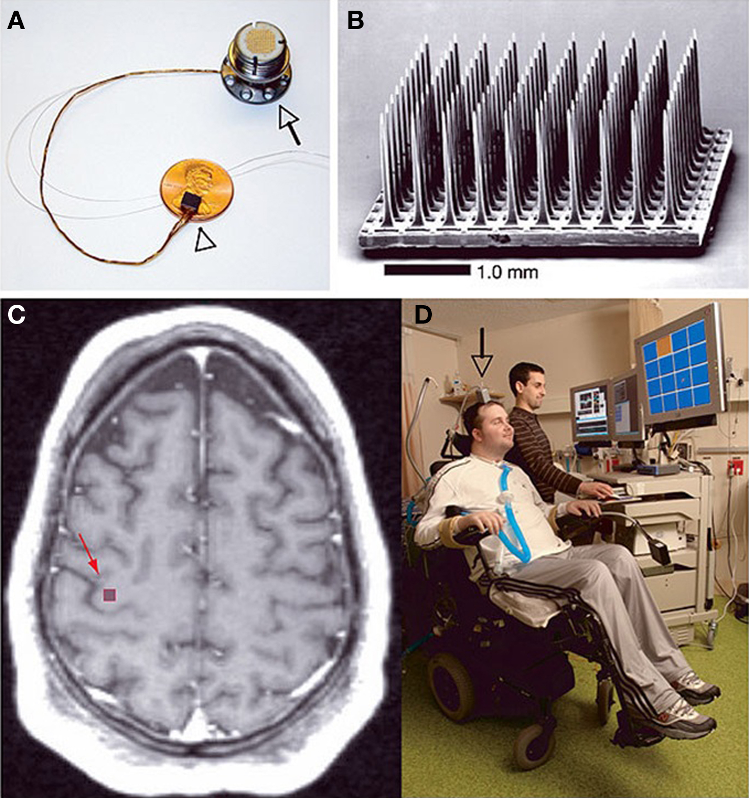 Neural Prostheses And Brain Plasticity Fneng G
