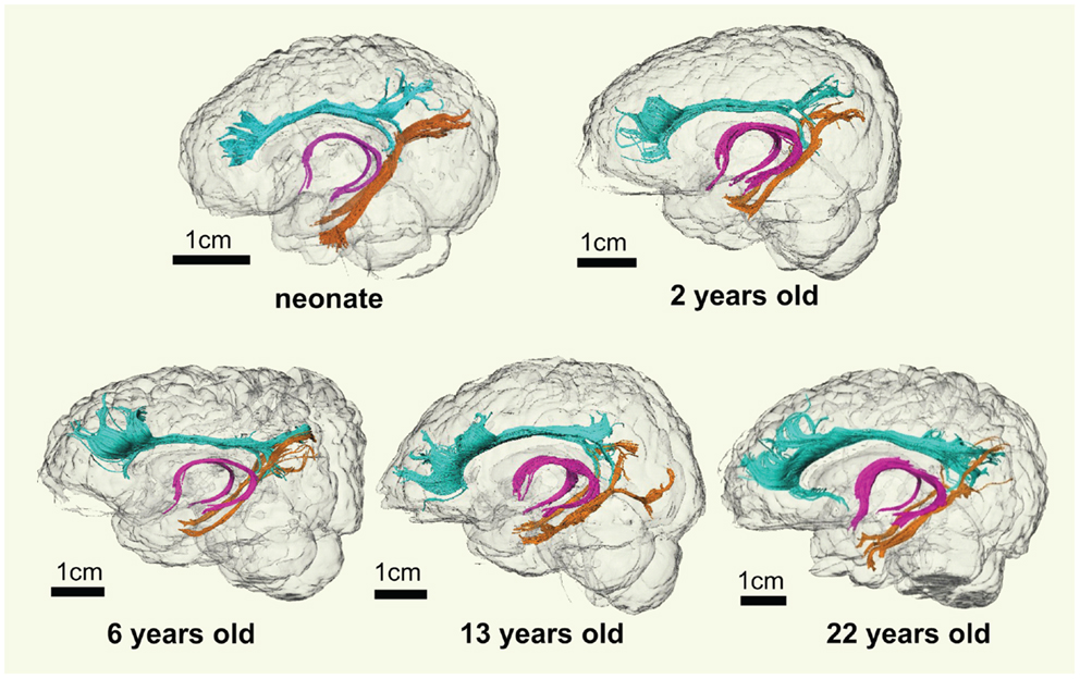 Improve your brain health image 3