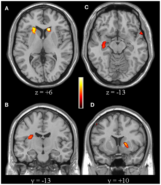 Subclinical Visuospatial Impairment In
