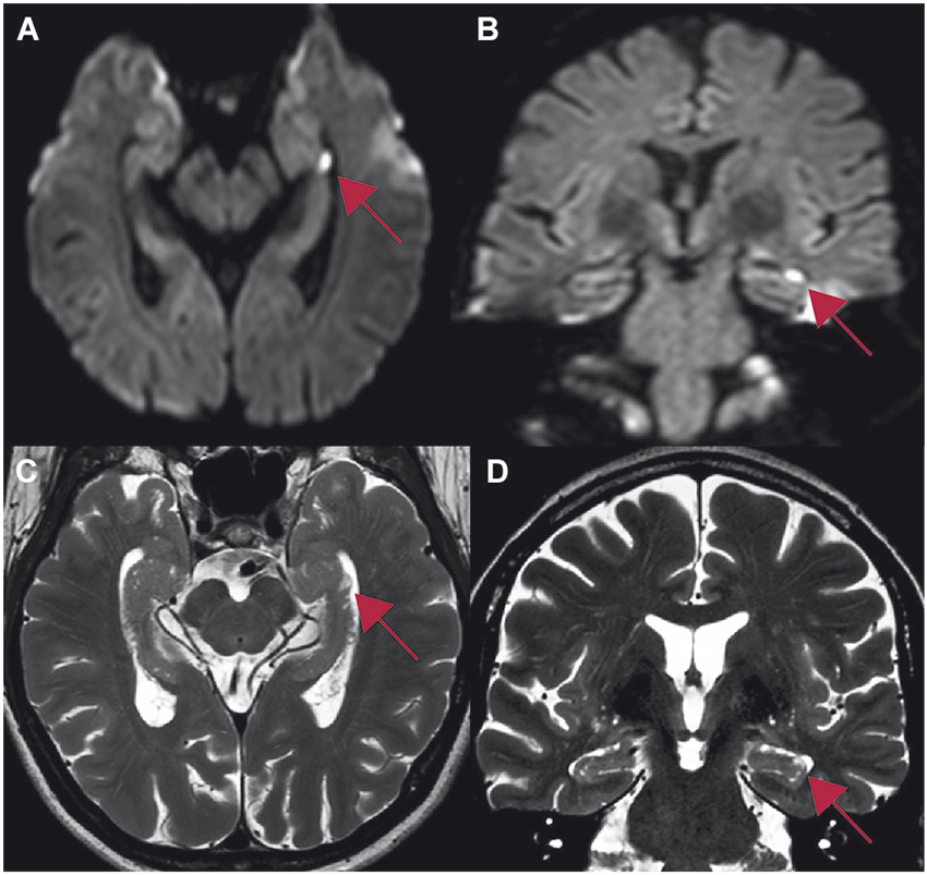 Frontiers Stress Related Factors In The Emergence Of Transient
