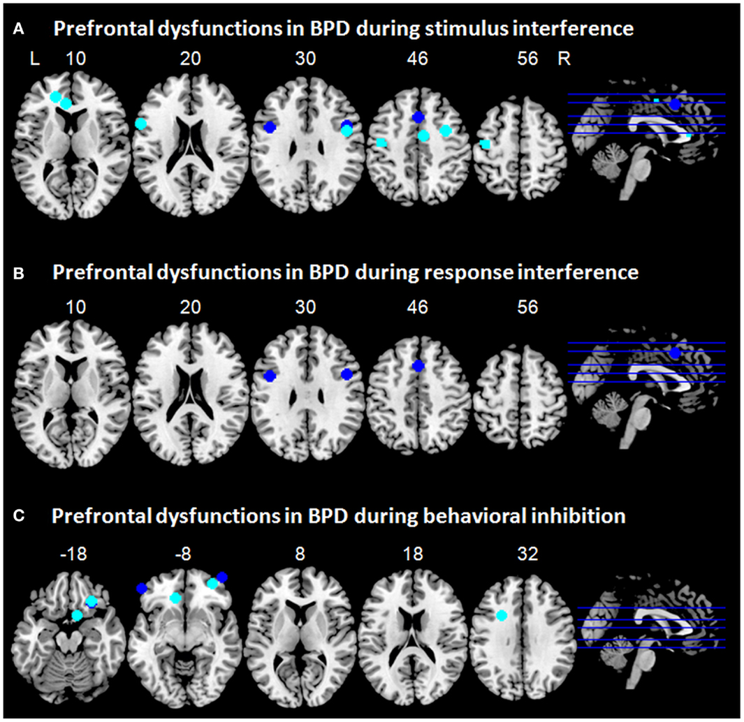 Frontiers   Frontal Dysfunctions of Impulse Control – A Systematic