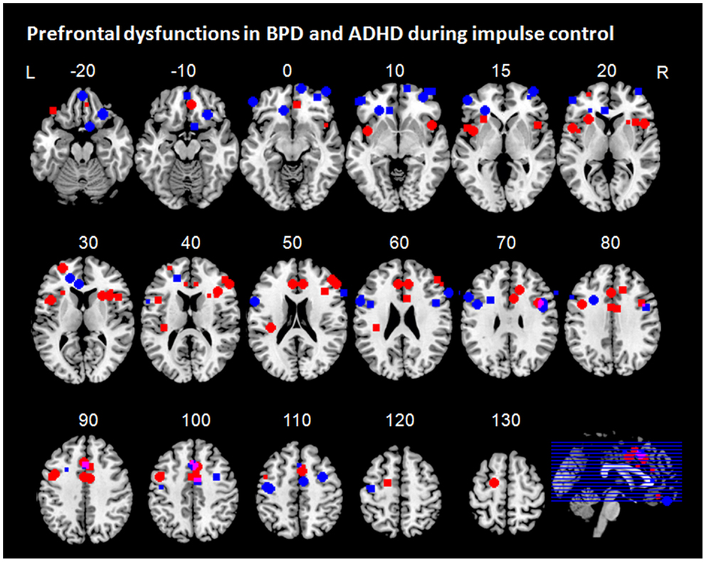 Frontiers | Frontal Dysfunctions of Impulse Control – A