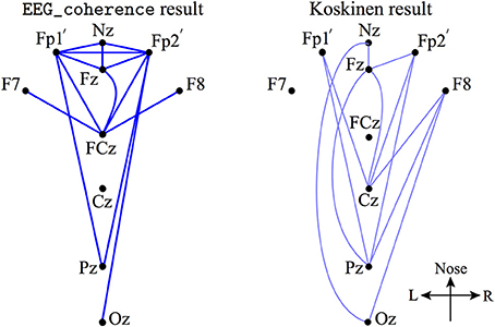 Frontiers | EEG slow-wave coherence changes in propofol