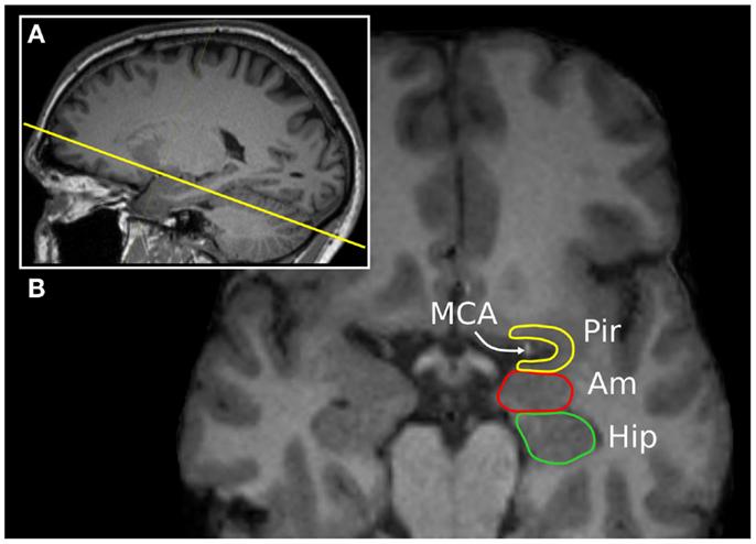 Frontiers The Piriform Cortex And Human Focal Epilepsy Neurology