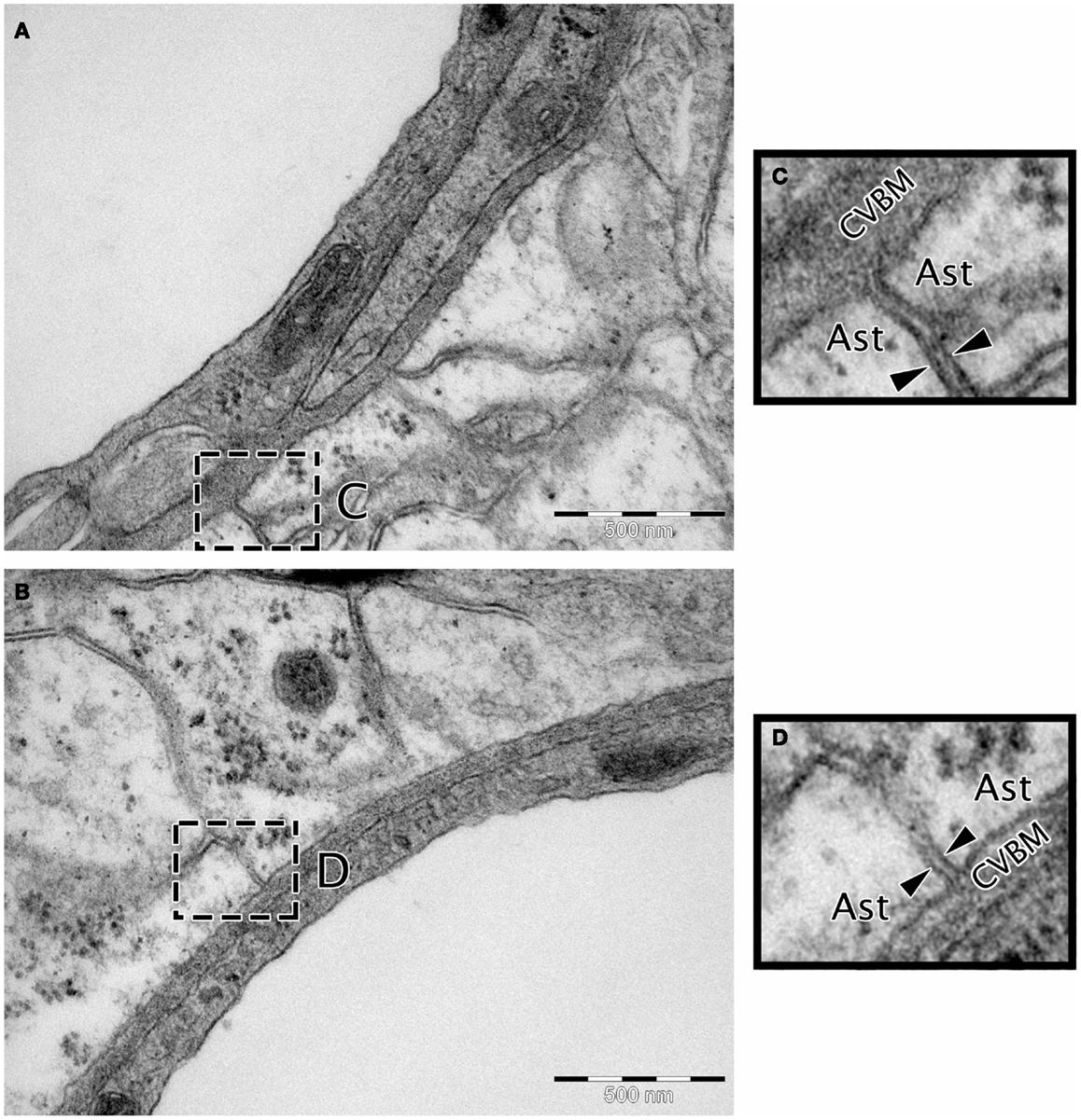 The Cerebrovascular Basement Membrane: Role In