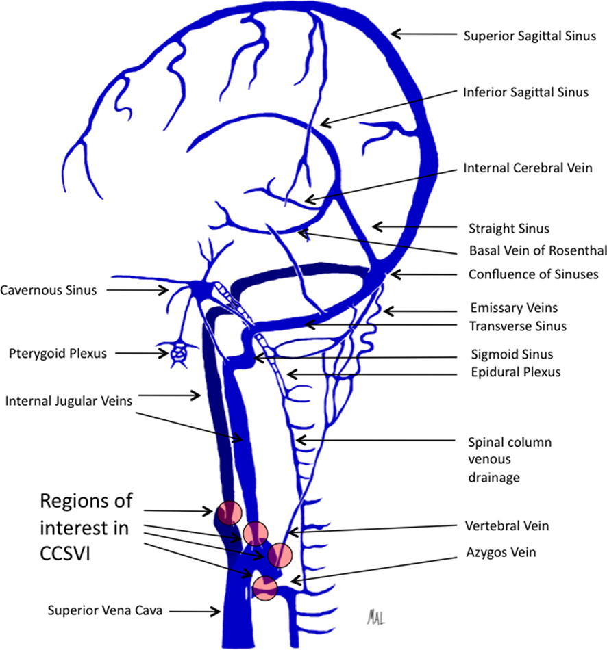 Frontiers Endovascular Therapy For Chronic Cerebrospinal Venous