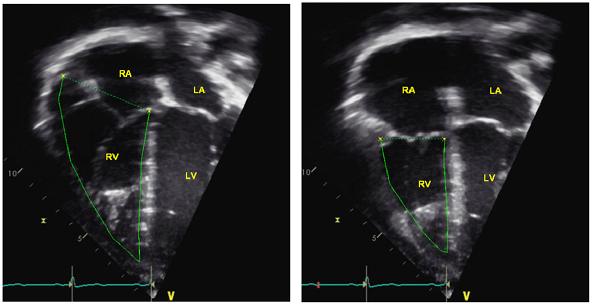 Frontiers Echocardiography In Pediatric Pulmonary