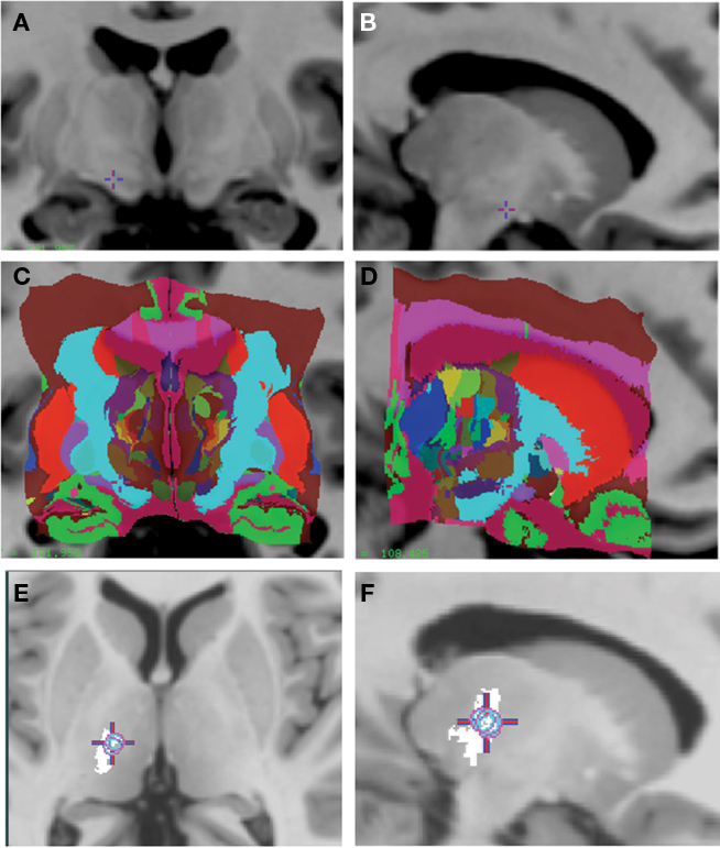 Frontiers | Creation of Computerized 3D MRI-Integrated Atlases of ...