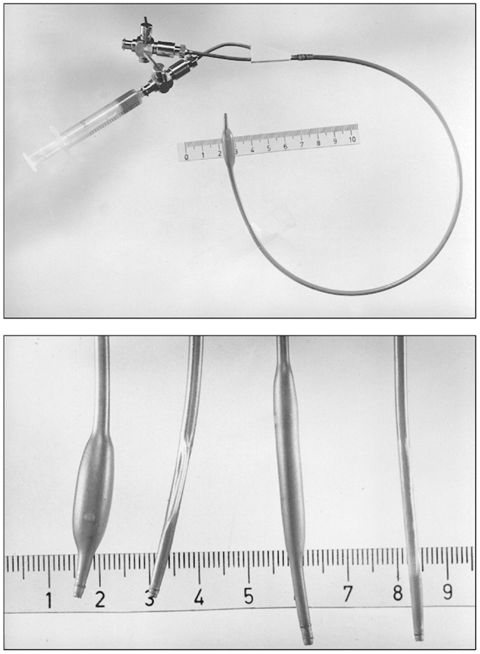 frontiers balloon angioplasty the legacy of andreas grüntzig